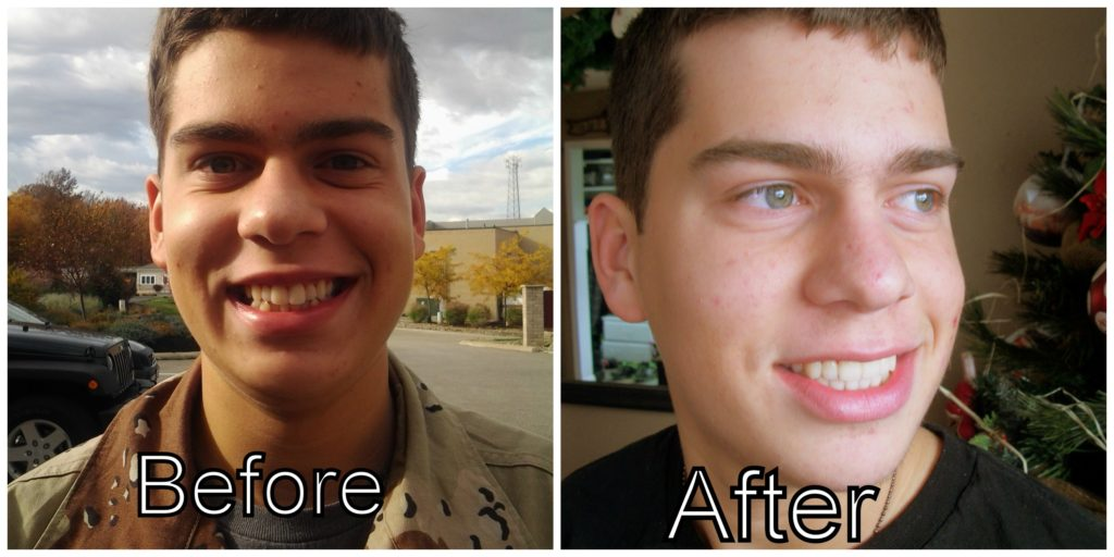 Colton before after